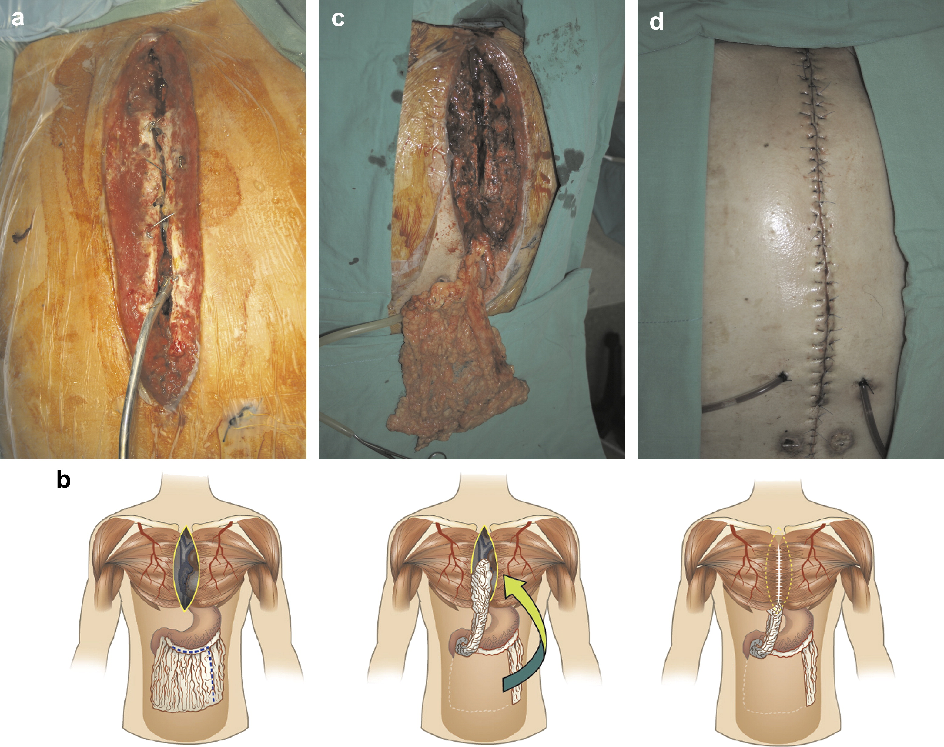Reconstruction For Sternal Osteomyelitis At The Lower Third Of Sternum