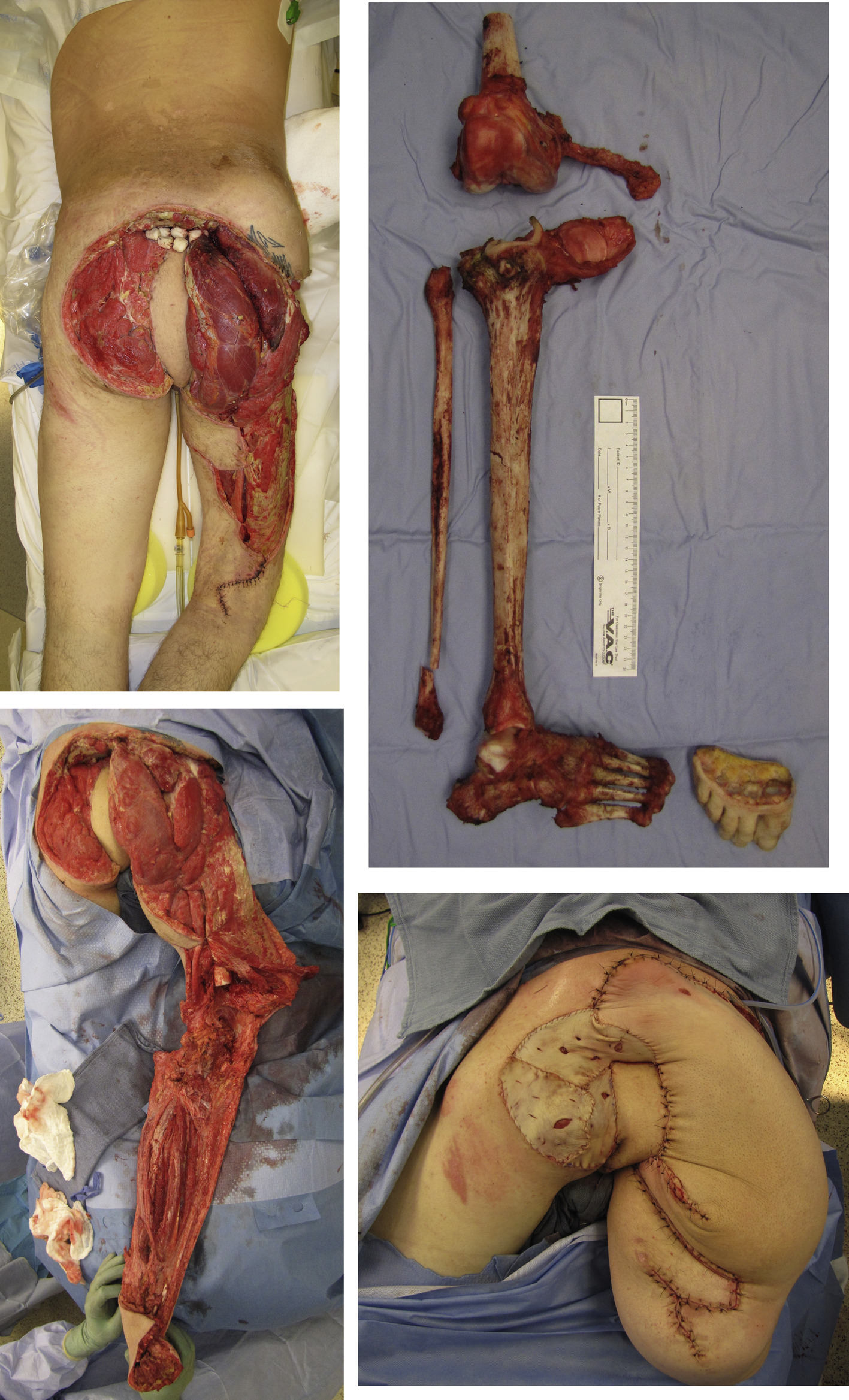 Pedicled Lower Extremity Fillet Flap For Coverage Of Massive Pelvic Wounds